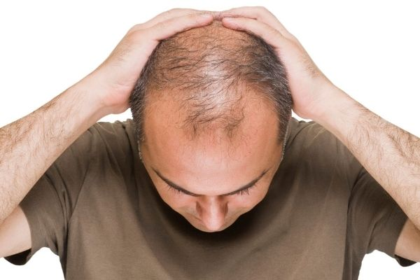 How to Stop Hair Fall in men